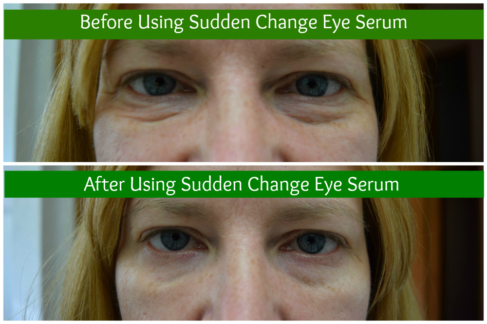 sudden change eye serum before and after